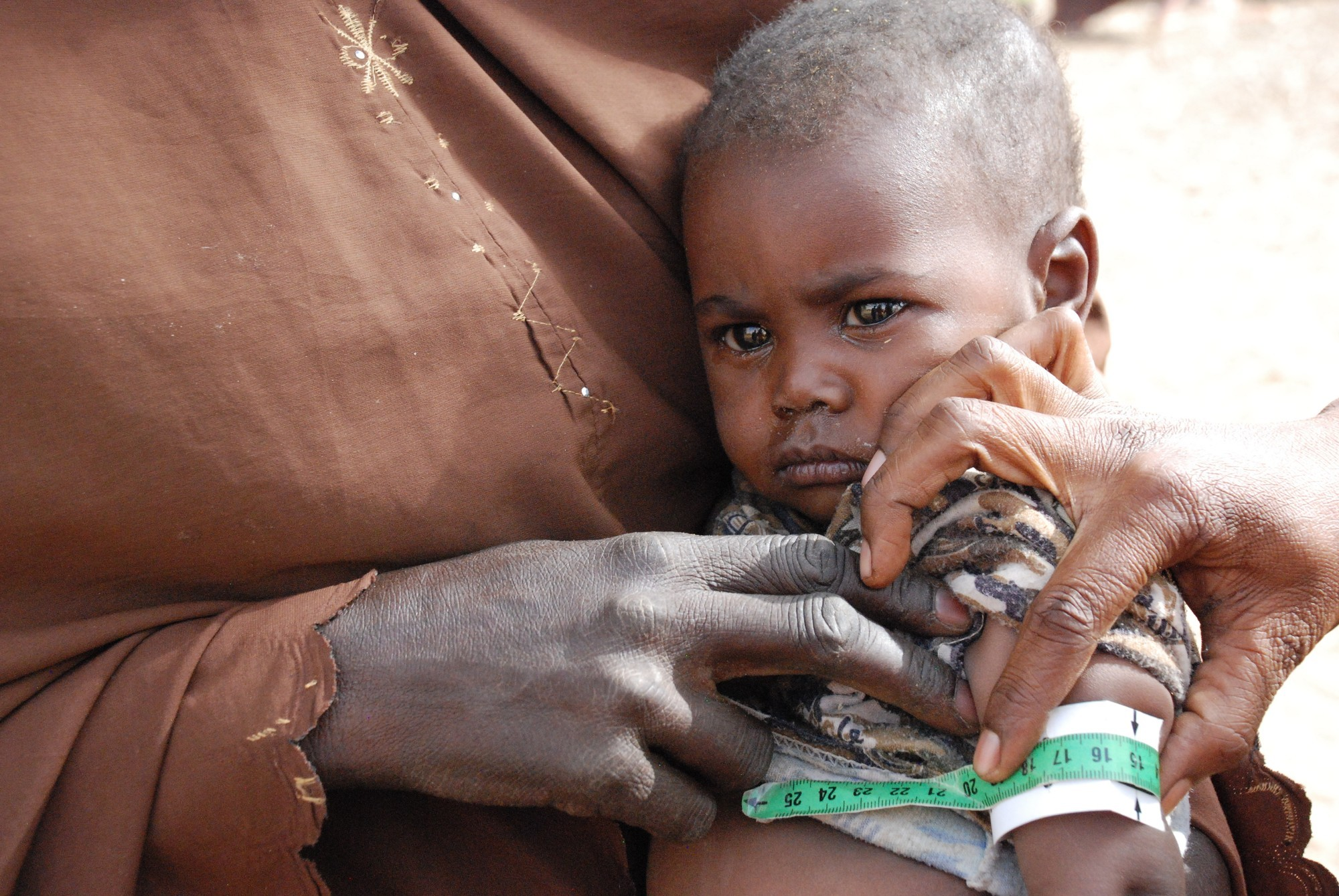 Baby being measured to check against malnutrition