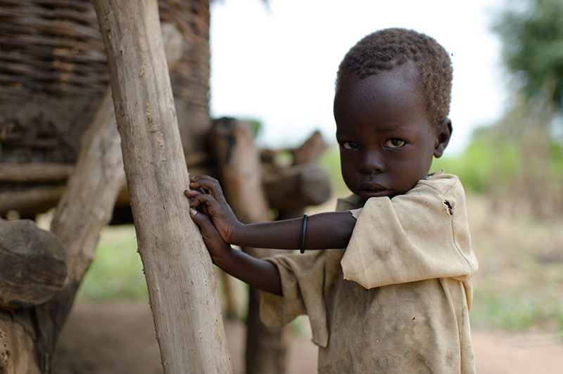 Child affected by the food crisis in South Sudan