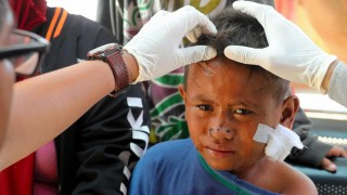 A boy receives treatment after the earthquake in Indonesia